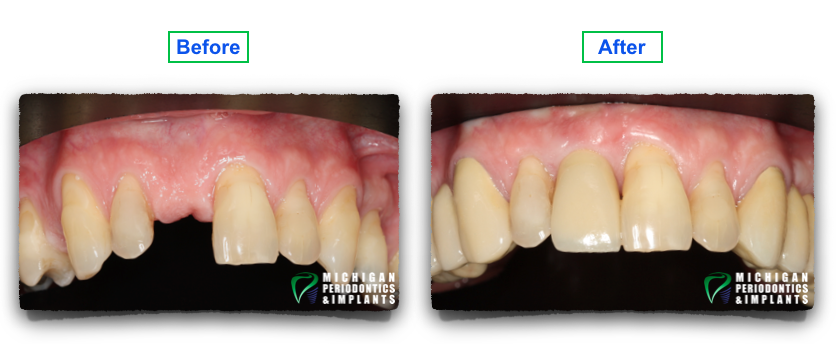 Before and After Dental Implants 2