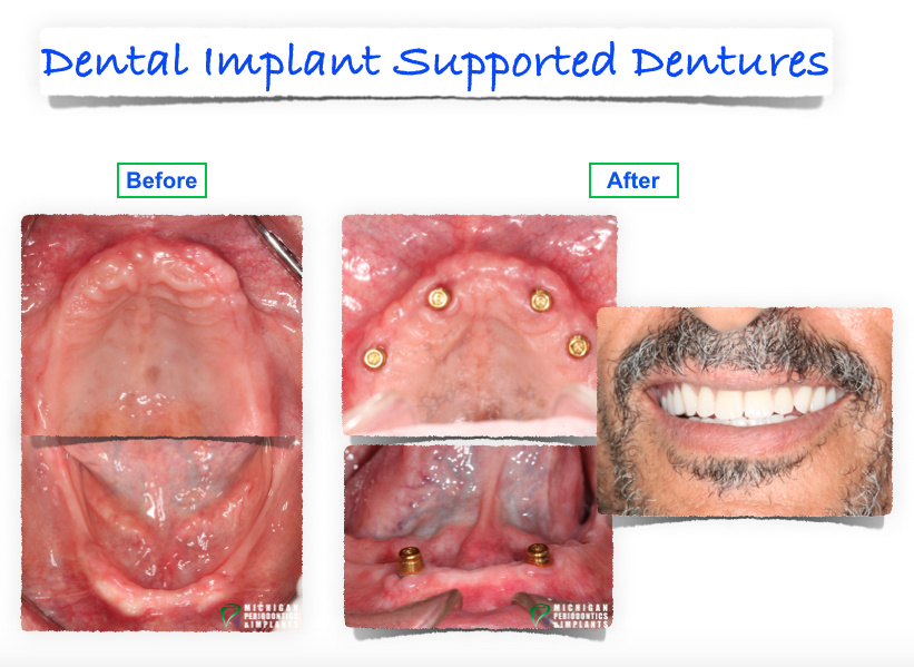 Before and After Implant supported Dentures