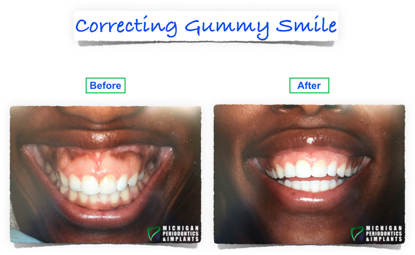 Before and After Gummy Smile