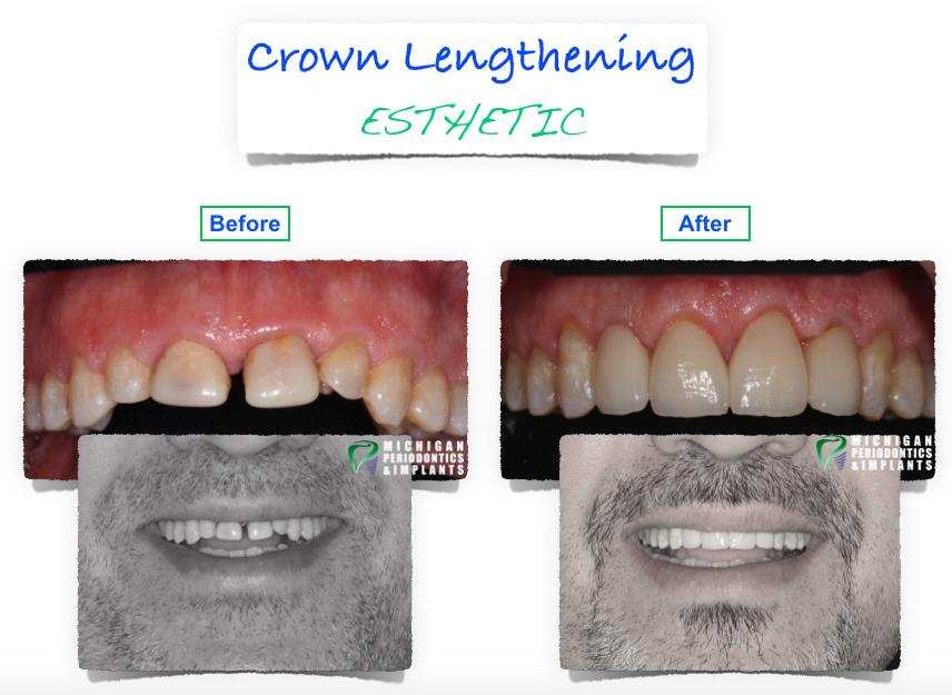 Before and After Crown Lengthening