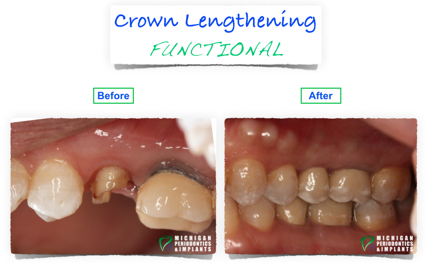 Before and After Functional Crown Lengthening
