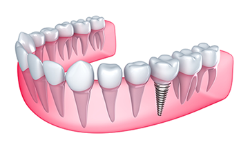 Dental Implants in Sterling Heights, MI